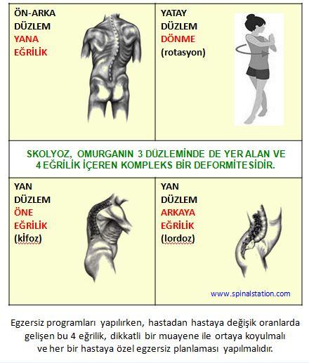 Skolyoz Ameliyat Oncesi Ve Sonrasi Sayfasi Dr Erbil Oguz
